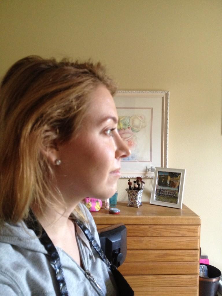 one year post rhinoplasty