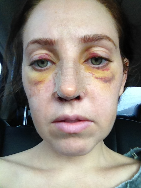 after cast removal rhinoplasty