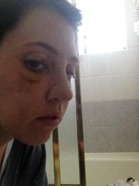 day six after rhinoplasty