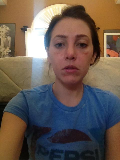 four days after rhinoplasty