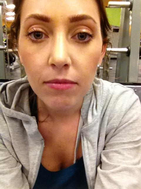 one month post rhinoplasty