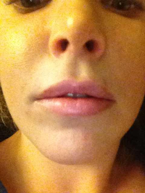 After Lip Injections