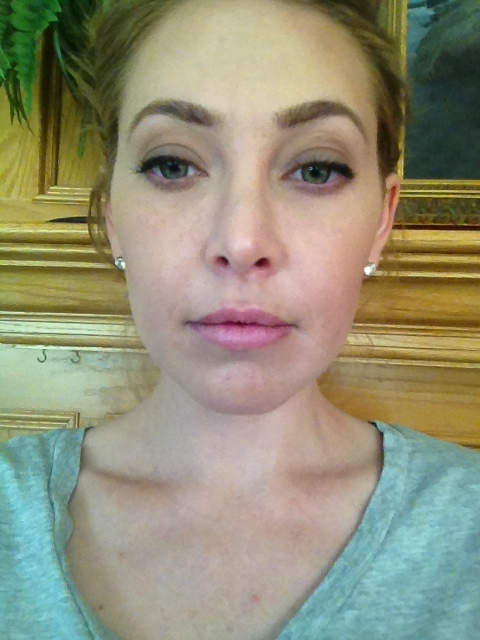 After Restylane Injections